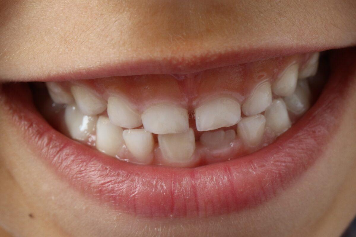 ¿Qué significa soñar con los dientes?